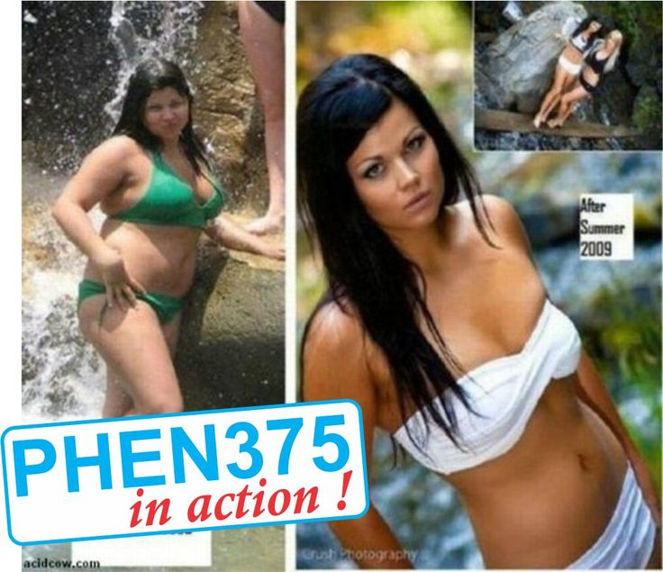 before after phenetermine 375