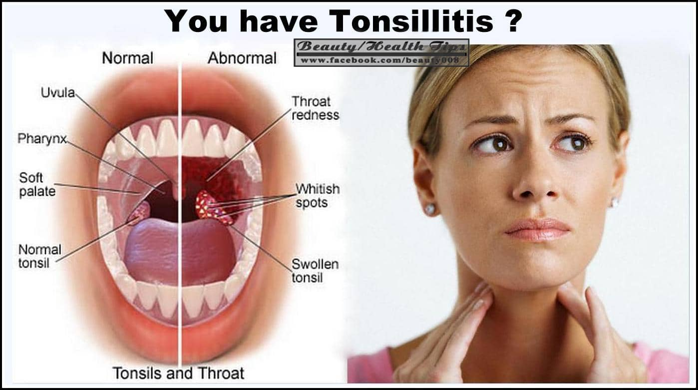 4 Benefical Ways To Remove Tonsil Stones
